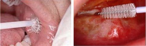 Promising Future in the Detection of Oral Cancer by Using
