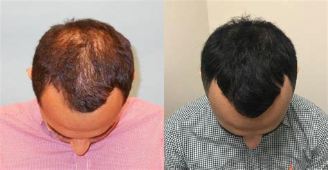 ACell + PRP Hair Loss Therapy Case Study - News - McGrath