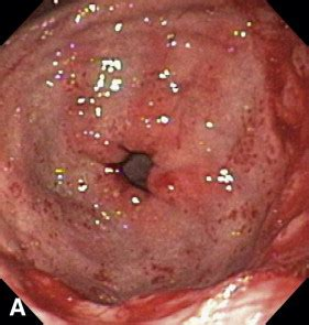 Treatment of gastric antral vascular ectasia (watermelon